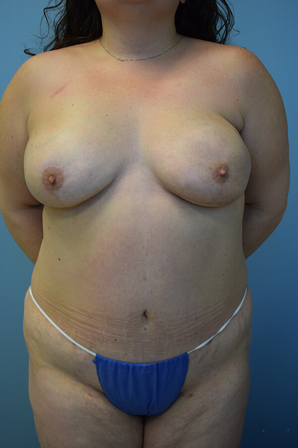 Dr. Spiegel Patient - After Latissimus Flap