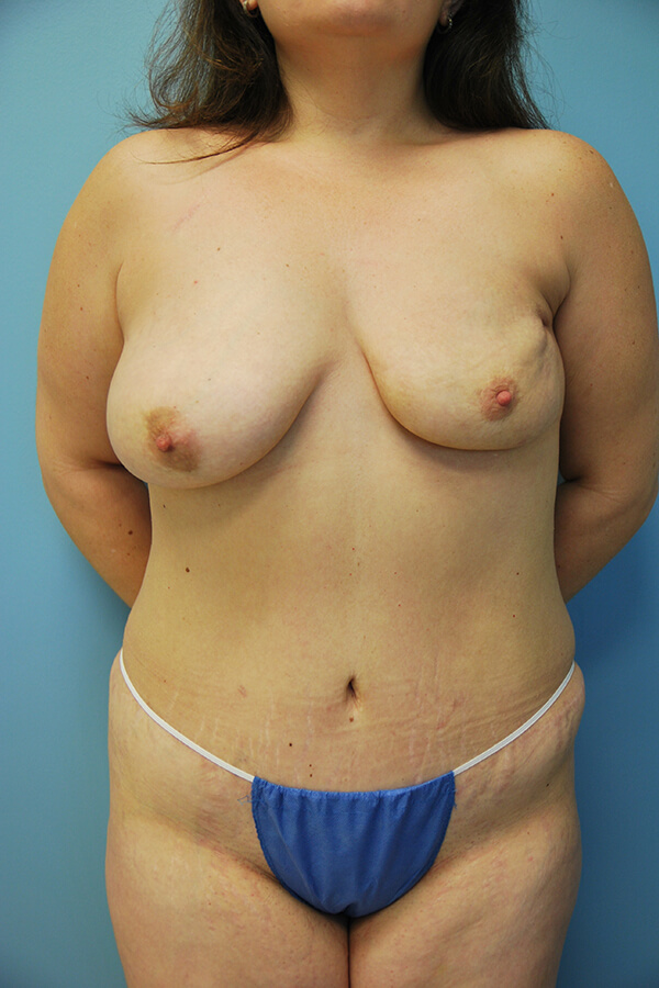 Dr. Spiegel Patient - Before Latissimus Flap
