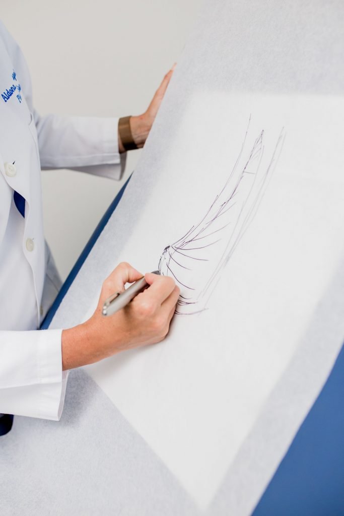 Dr. Spiegel Illustration of Breast